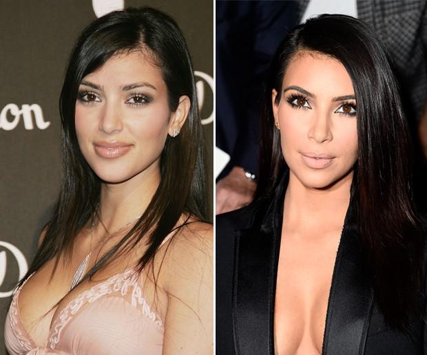 antes-e-depois-kim-kardashian
